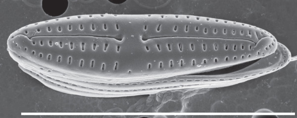 Un gros plan microscopique d'une diatomée marine.