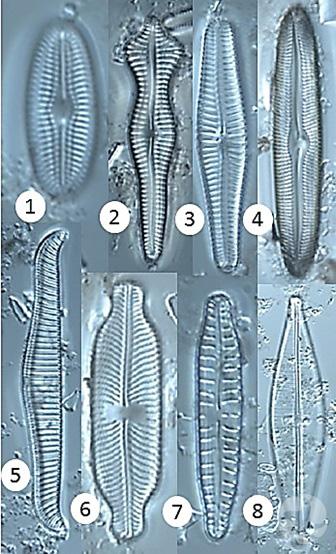 Ensemble de diatomées vues au microscope.