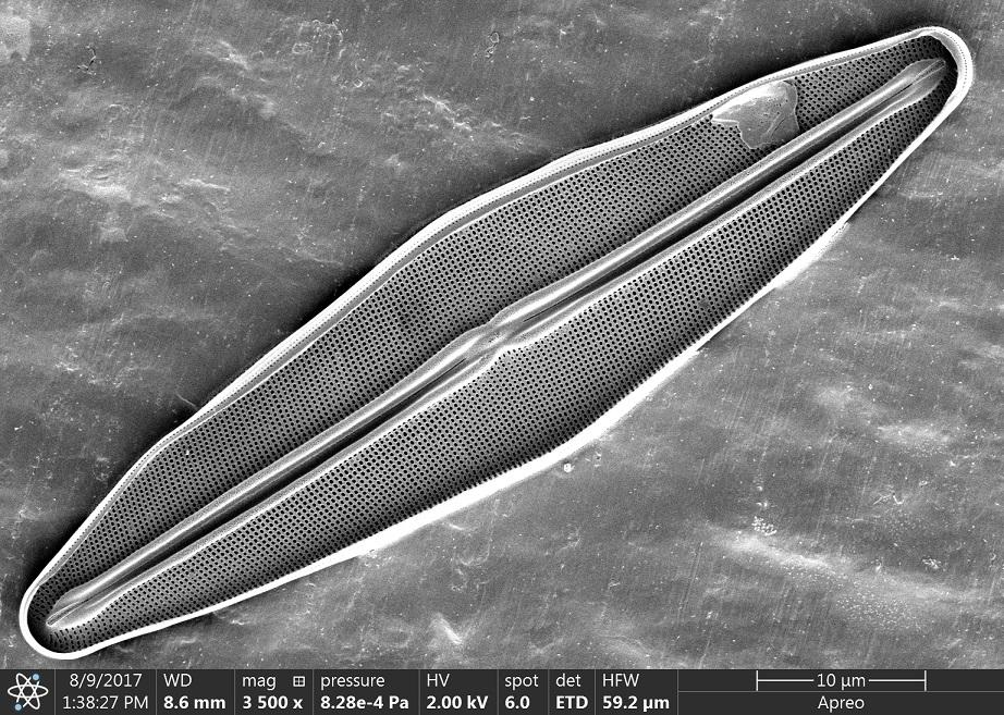 Micrographie électronique en noir et blanc d'une seule diatomée de forme ovale, le grand axe en diagonale, le centre traversé d'une rainure sombre.
